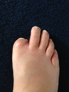 The freshly straightened toes (with Stubby to the left)